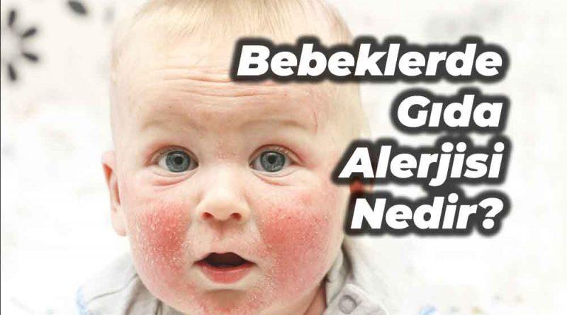bebeklerde gıda alerjisi