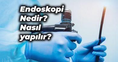 endoskopi nedir