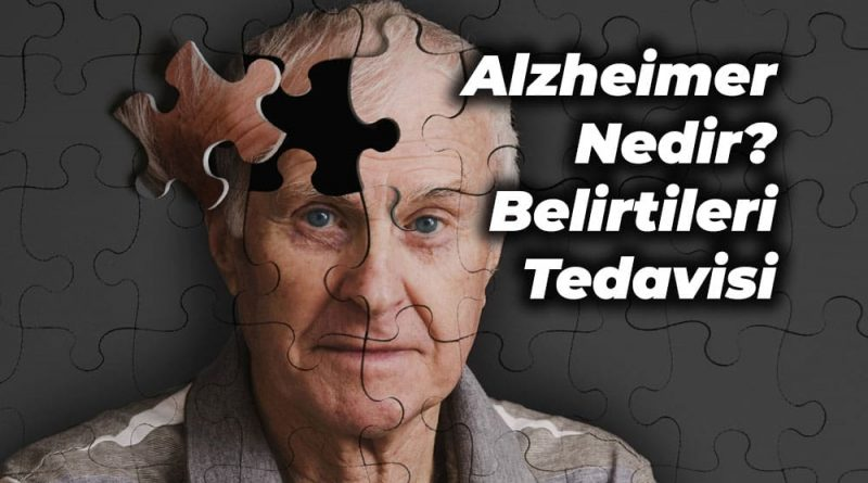 alzheimer nedir tedavisi